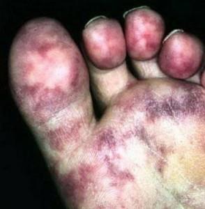 livedo reticularis aan de voet door cholesterolembolieën
