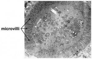 microvillusinclusieziekte - elektronenmicroscopie