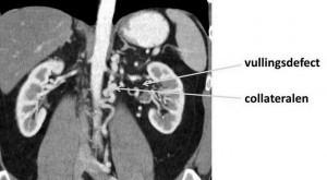 niervenetrombose op MRI-scan