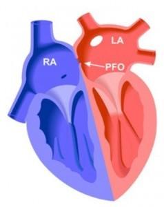open foramen ovale (PFO)