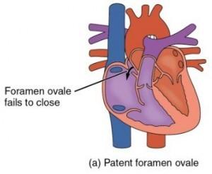 open foramen ovale (persisterend foramen ovale)