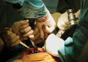 vetembolie na operatie aan skelet