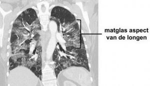 vetembolie-syndroom - matglasaspect longen op CT-scan