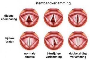 stembandverlamming bij laryngoscopie