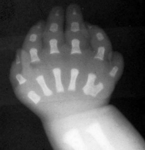 syndroom van Ellis-Van Creveld - röntgenfoto hand