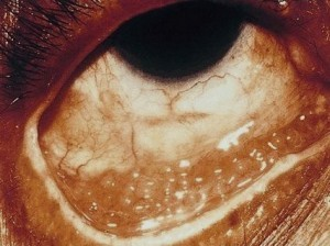 Chlamydia-conjunctivitis
