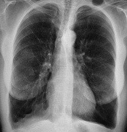 kortademigheid door longemfyseem - X-thorax met hyperinflatie