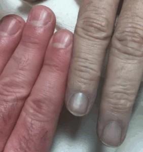 methemoglobinemie - cyanotische verkleuring van de vingers