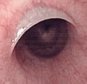 slokdarmweb tijdens oesofagoscopie