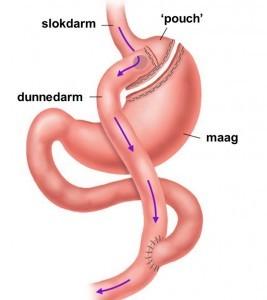 dumpingsyndroom na maagverkleiningsoperatie - route van het voedsel