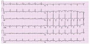 hartfilmpje (ECG) met ischemie