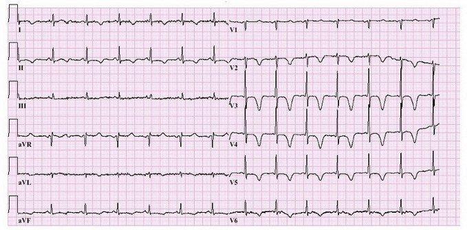 hartfilmpje (ECG) bij pijn in borstkas