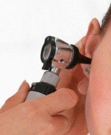 otoscopie bij otosclerose