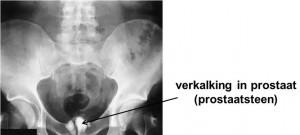 prostaatstenen op röntgenfoto