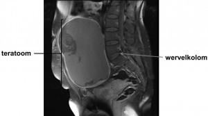 teratoom van de eierstok (ovariumteratoom) op MRI-scan