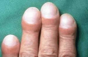 trommelstokvingers bij longziekten