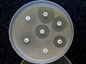 bepalen gevoeligheid bacteriën voor antibiotica bij bloedvergiftiging (sepsis)