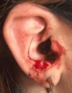 bloed uit oor