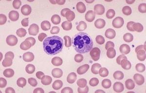 bloedbeeld voor onderzoek bloedarmoede bij mensen die het koud hebben (kouwelijkheid)