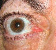 oogziekte van Graves - lidretractie