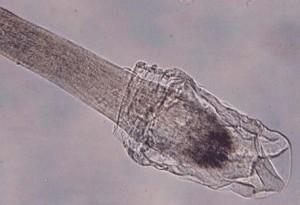 haarpluktest - uitgetrokken haar onder de microscoop