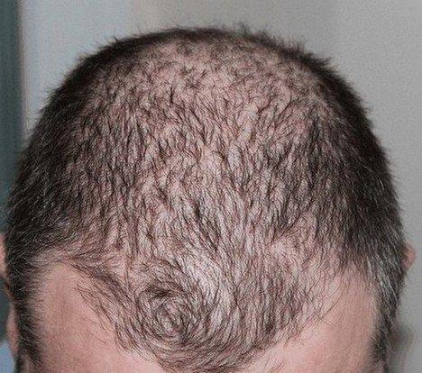 diffuse haaruitval van hoofdhaar