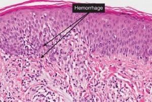 huidbiopsie van patiënt met de ziekte van Schamberg (progressieve purpura)