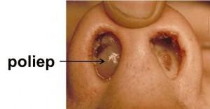 neuspoliep zichtbaar in neus