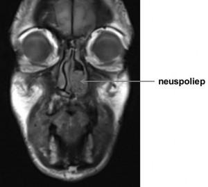 neuspoliepen - MRI-scan