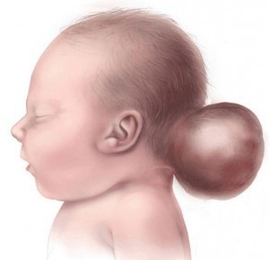 syndroom van Knobloch - encefalocele