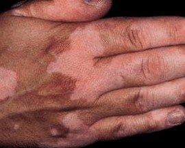 witte vlekken hand door vitiligo