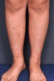 ziekte van Schamberg - huidafwijkingen op de onderbenen