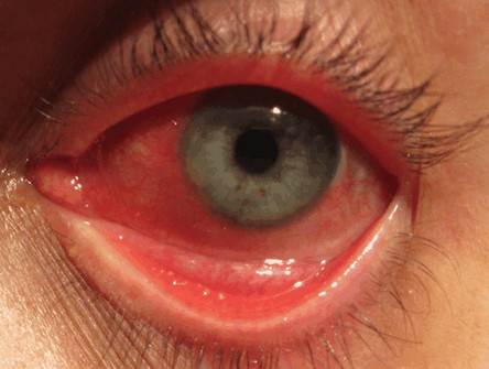 rood oog