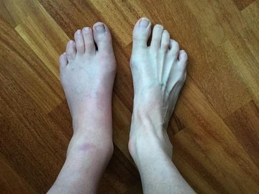complex regionaal pijnsyndroom - linker voet