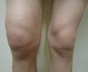 dikke knie door vocht in knie (hydrops van de knie)