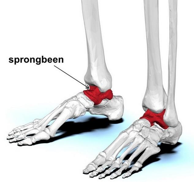 sprongbeen (talus) is aangetast bij osteochondritis dissecans van de enkel