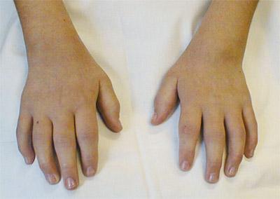 zwelling van de vingers bij jeugdreuma