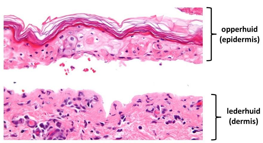 Stevens-Johnson syndroom - huidbiopt - splijting tussen dermis en epidermis