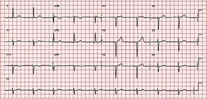 hartfilmpje (elektrocardiografie, ECG) bij hartkloppingen