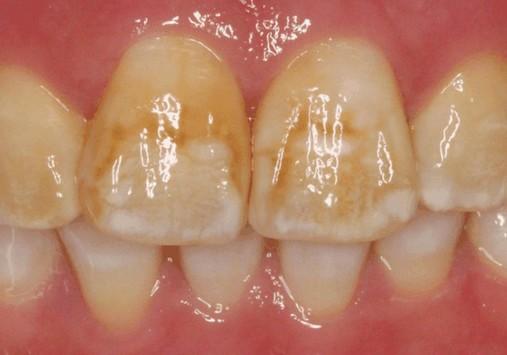 verkleuring tanden