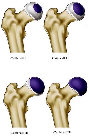 ziekte van Perthes - Catterall-indeling
