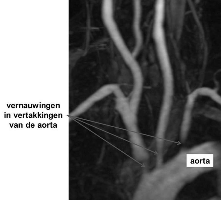 ziekte van Takayasu - vernauwingen vertakkingen aorta op MRA