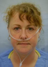 zuurstofbehandeling bij lymfangioleiomyomatose