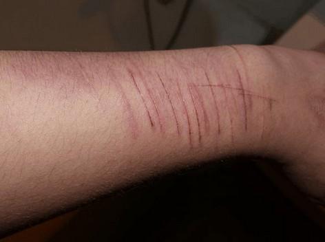 automutilatie - zelfbeschadiging door krassen op de onderarm