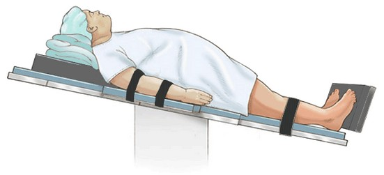 orthostatische hypotensie - tilt table test