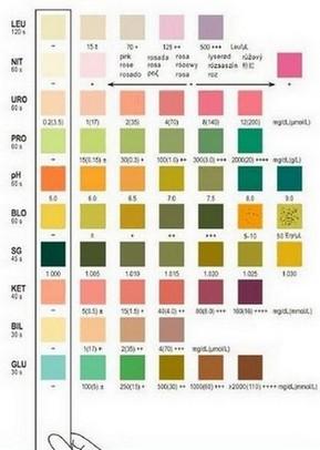 zelftesten urine - kleurenkaart