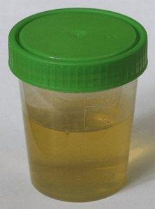 urineonderzoek - bepalen urobilinogeen in urine