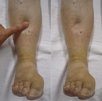 pitting oedeem aan de onderbenen