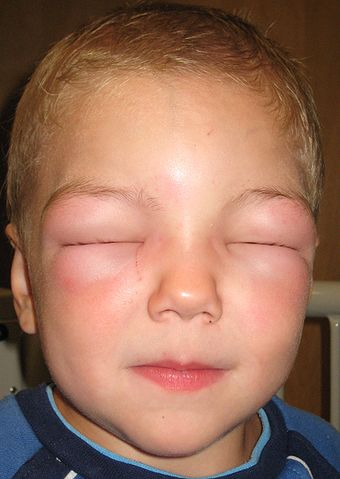 zwelling van de oogleden door angio-oedeem