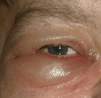 zwelling van de oogleden door oedeem